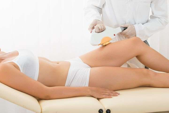 How laser hair removal works?