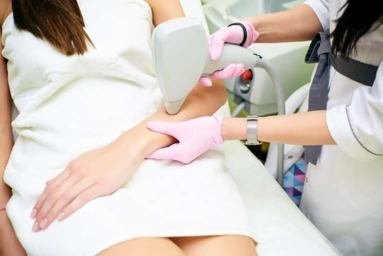 5. Professional arms laser hair removal