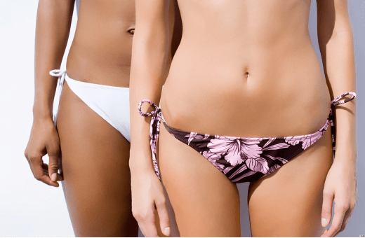 Who can use a laser to remove hair from the bikini area?