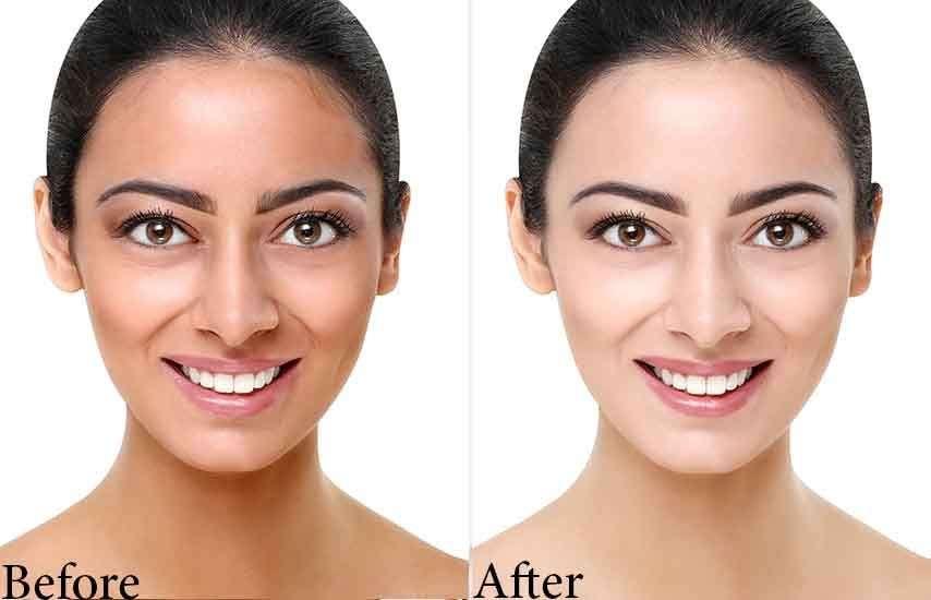 does laser hair removal lighten skin