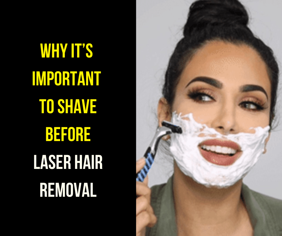 Why it's important to shave before laser hair removal