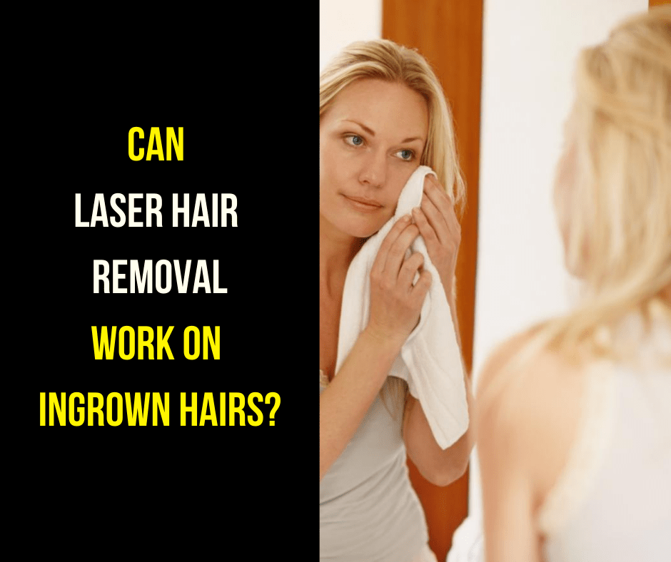 can laser hair removal work on ingrown hair