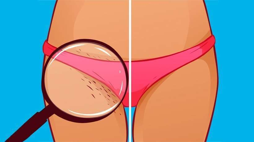 how to get rid of ingrown-hair
