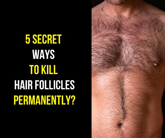 5 Unknow wayshow to kill hair follicles permanently