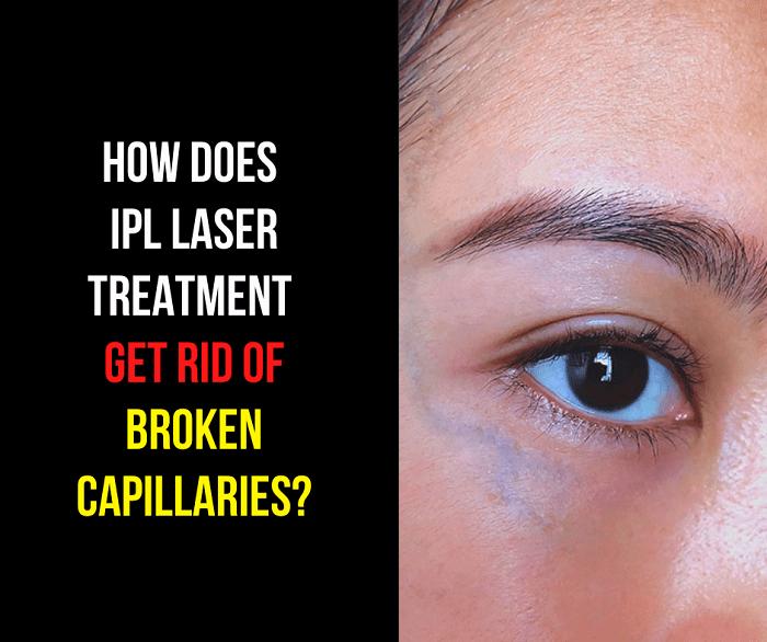 How does IPL Laser Treatment Get Rid of Broken Capillaries