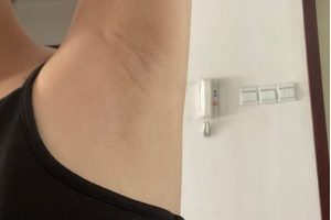 laser hair removal shaved armpit