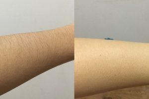 IPl hair removal handset